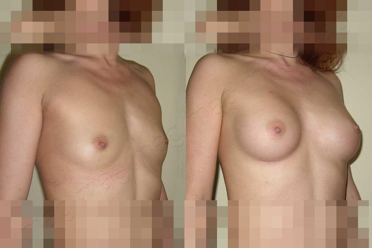 Увеличение (эндопротезирование) груди