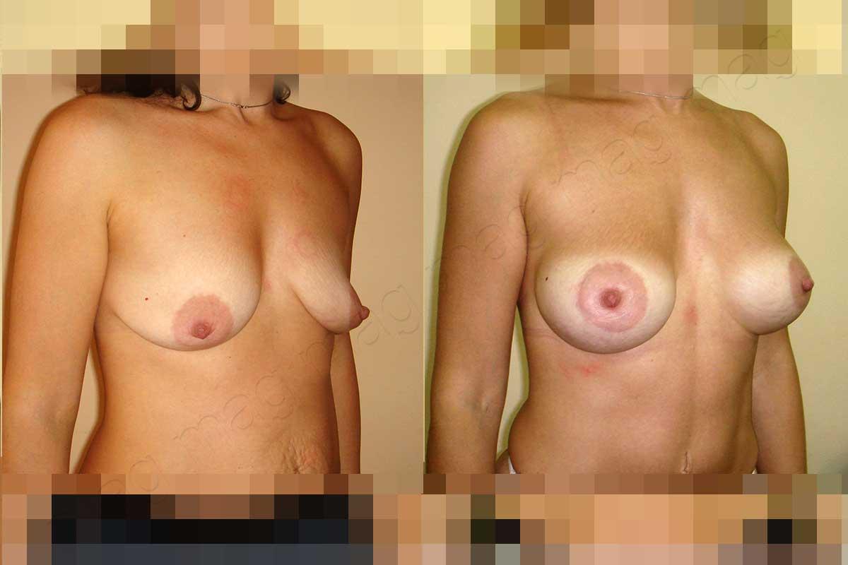 Эндопротезирование опущенной груди