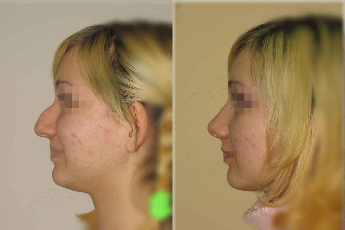 Удаление дермоидной кисты носа
