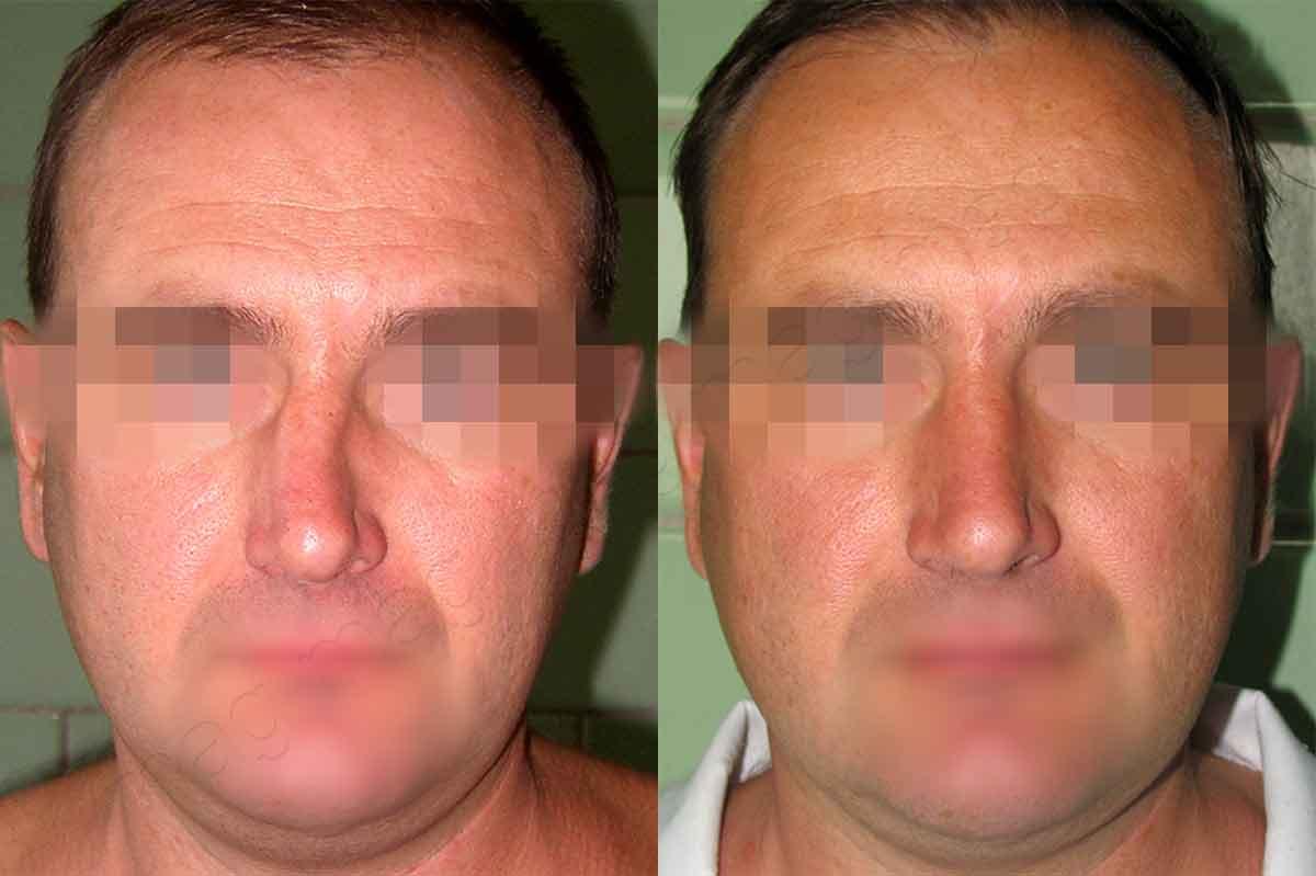 Пластика постравматической деформации носа у мужчины