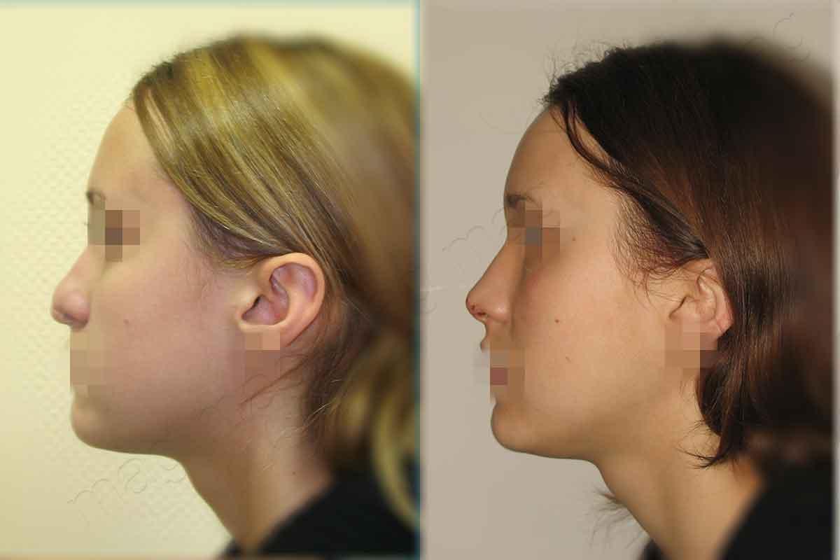 Восстановление кончика носа