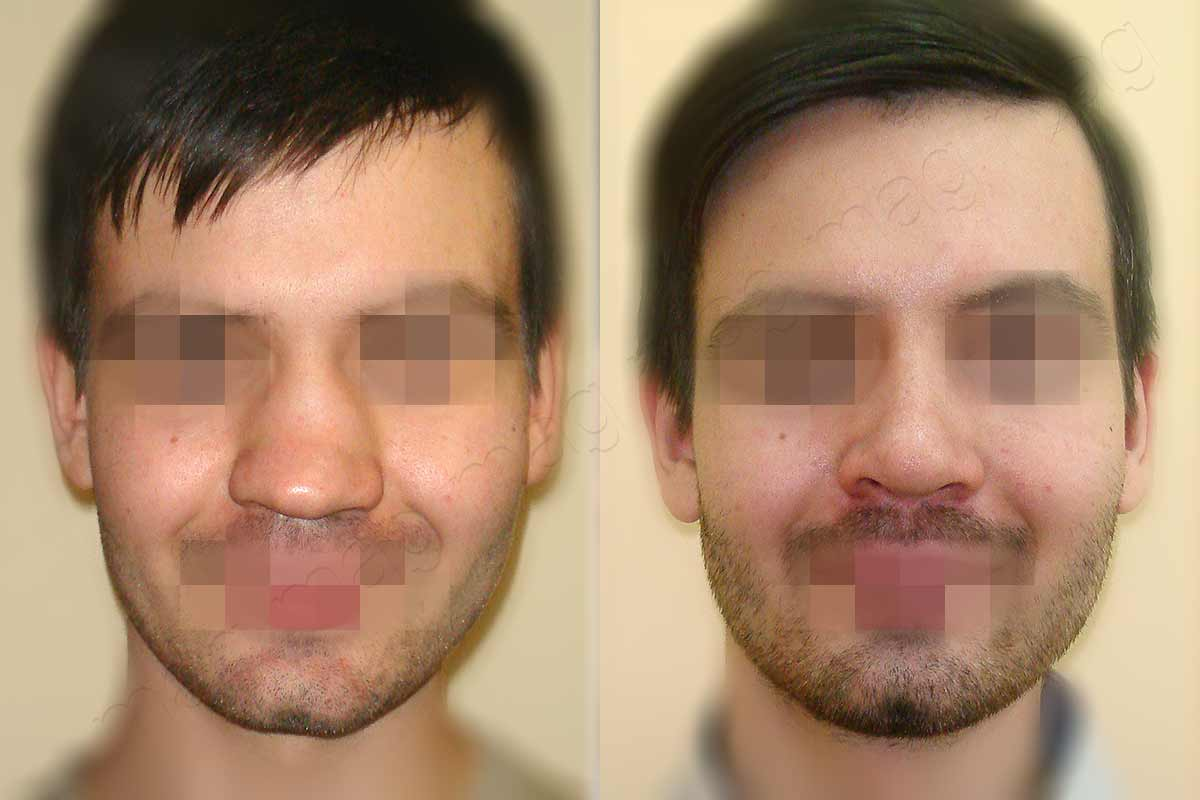 Устранение седловидной деформации носа